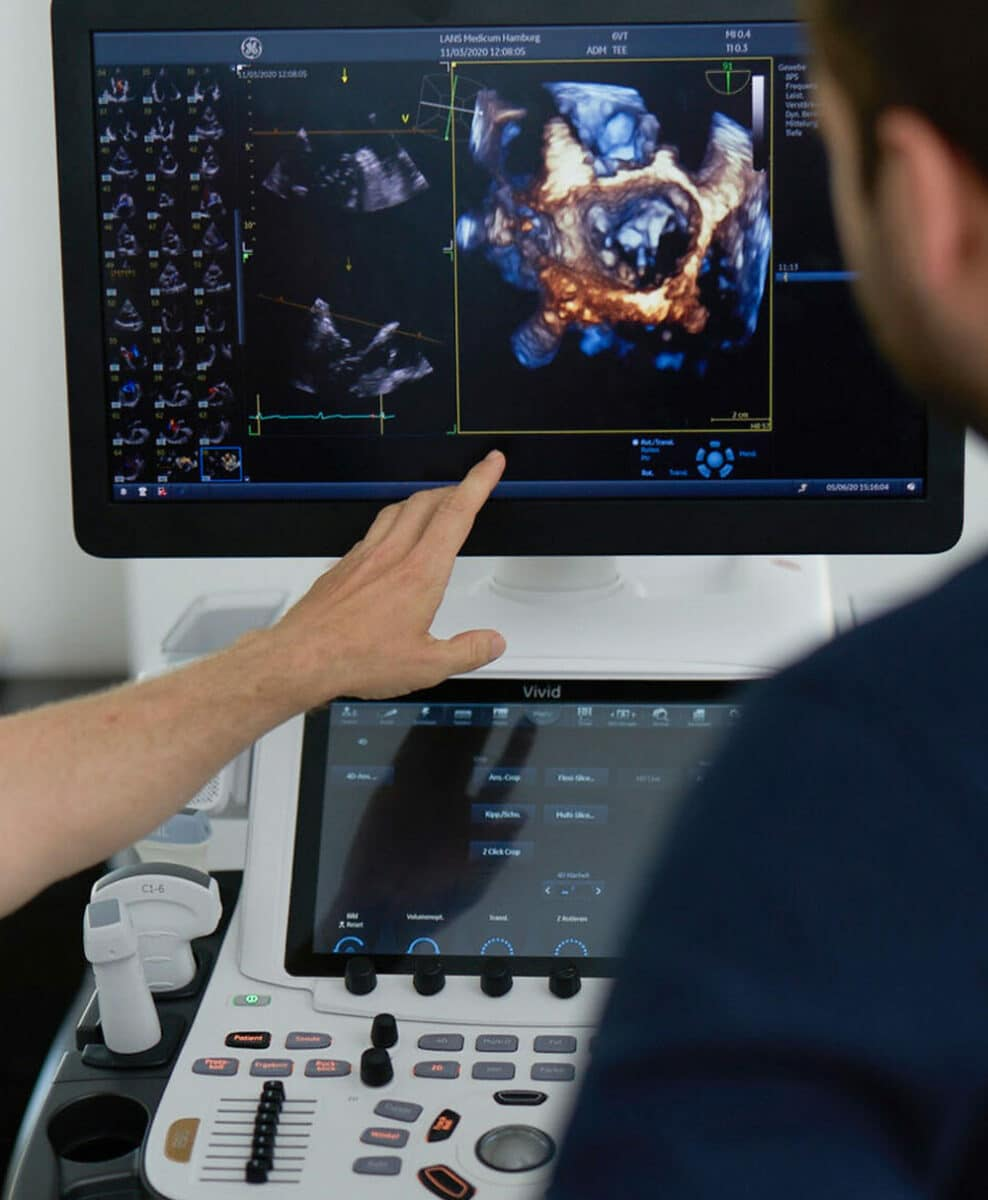 Picture of two doctors of Lans Cardio in Hamburg Germany